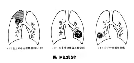 肺的简笔画图片大全